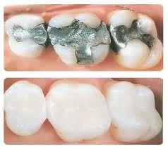 The primary aim of this type of dentistry is to help restore the natural beauty of your teeth.