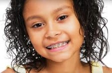 Typical candidates for braces are children between the ages of 7 and 14 because their facial structures are still developing.